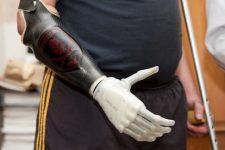 Щодо забезпечення учасників АТО, які втратили функціональні можливості кінцівок, протезуванням та/або ортезуванням за новітніми технологіями